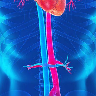 aorta-duplex1